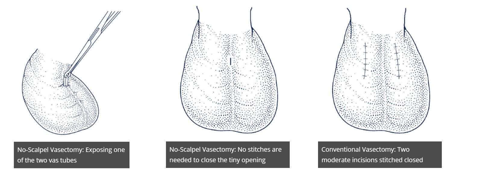 Get no scalpel vasectomy in Laval